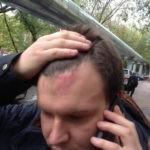 В Крылатском избили муниципального депутата, защищающего парк «Москворецкий» от застройки
