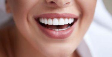 процедуры отбеливания зубов